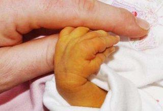 Icteríca neonatal 1b