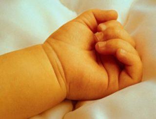 Icteríca neonatal 4b